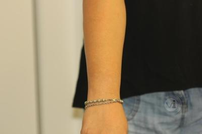 Dark tattoo on Asian skin after laser removal