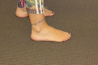 Coloured Foot Tattoo After Laser