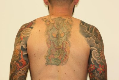 Coloured Back Tattoo Fade After Laser