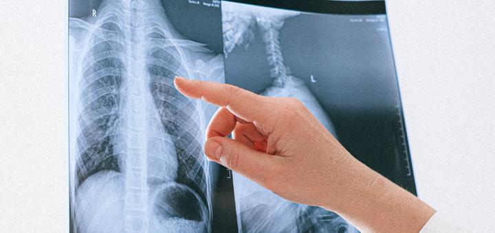 La Asociación Canadiense de Vapeo responde a un estudio que relaciona los cigarrillos electrónicos con lesiones pulmonares
