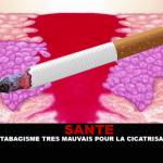 SANTE : Le tabagisme très mauvais pour la cicatrisation.