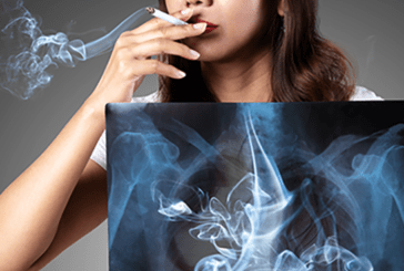TOBACCO: Pulmonologists warn women about the risk of COPD