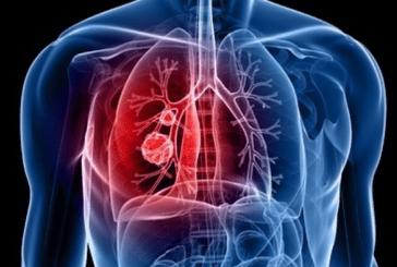 健康:一位教授指出肺癌。