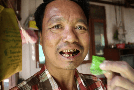 BURMA: 59% of deaths are the result of tobacco-related diseases!