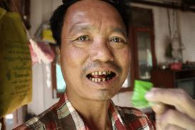 BIRMA: 59% dei decessi è il risultato di malattie legate al tabacco!