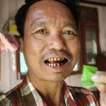 BIRMANIE : 59% des décès sont le résultat de maladies dues au tabac !