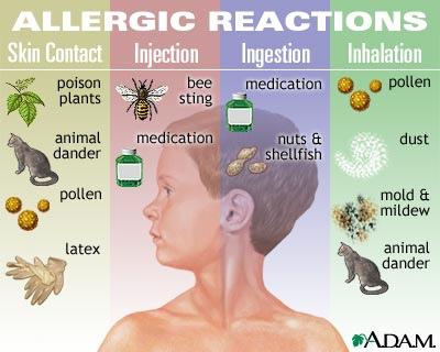 Allergisk? Allerede nå bør du starte med å forebygge!
