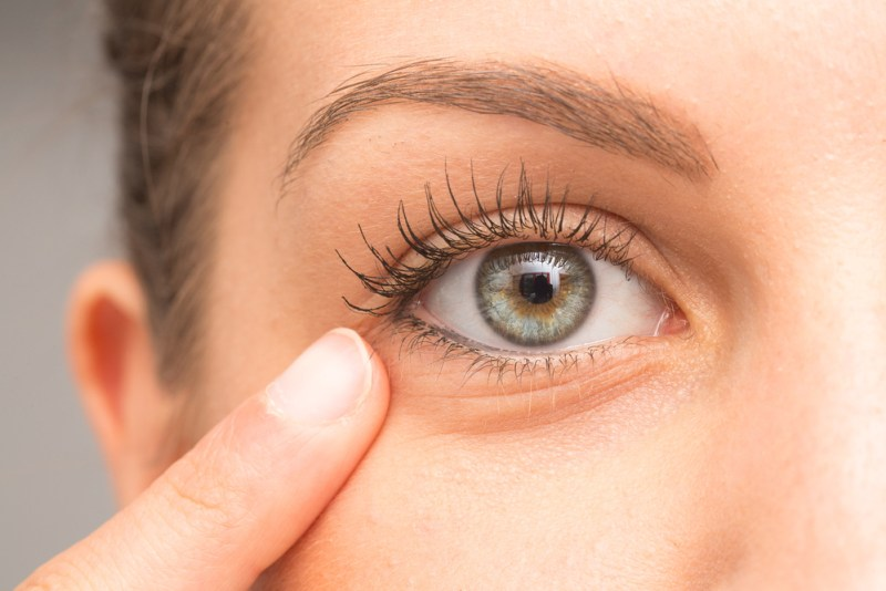 Sunken Eyes 4 Things You Should Know