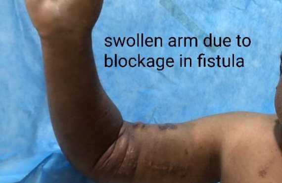 Swollen Arm Due to Blockage in Fistula