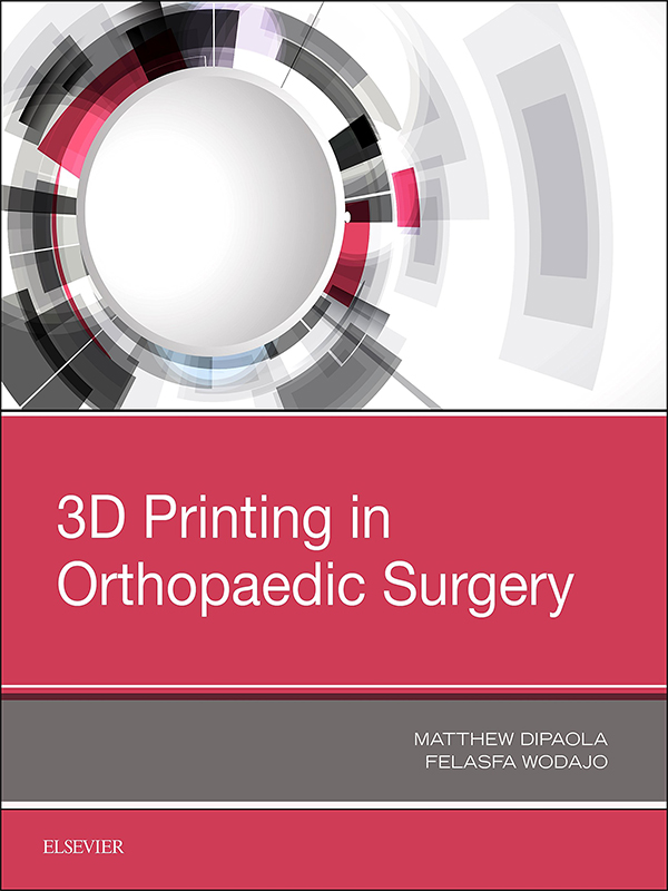 3D Printing in Orthopaedic Surgery by Dipaola & Wodajo