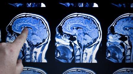 Künstliche Intelligenz als Hilfe für die Radiologie: Start-up erhält sechsstelligen Betrag