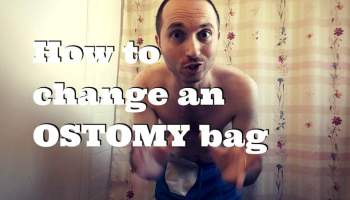 Know When to Change Your Ostomy Appliance | Stoma Care | VeganOstomy