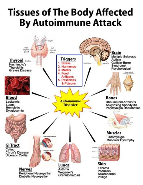 malattie_autoimmuni_intestino