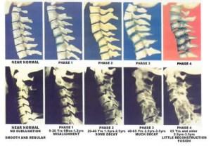 spinal decay woodbridge chiropractor pain relief