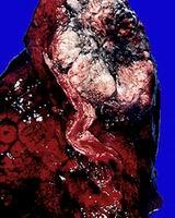 Pulmon de un fumador, cancer del pulmon, cancer pulmonar, lung cancer, dejar de fumar, causas del cancer del pulmon, efectos y consecuencias del cancer pulmonar, ayuda para fumadores