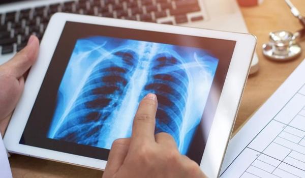 ACTO raises $11.5 million to bolster life sciences sales with AI