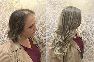 O que é alopecia?