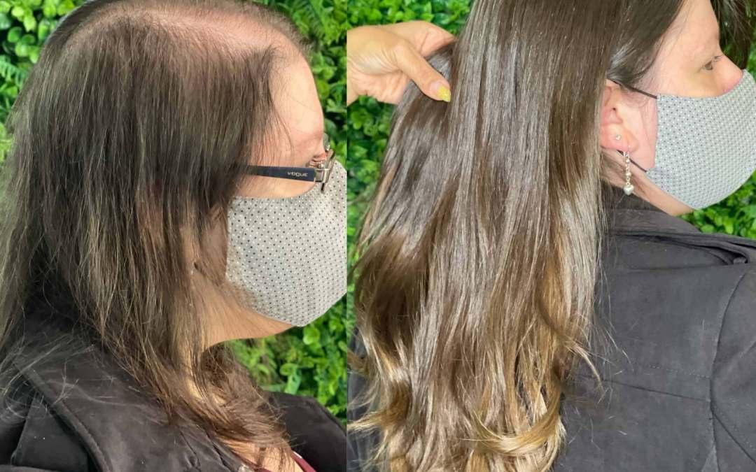 Prótese Capilar para quem tem pouco cabelo