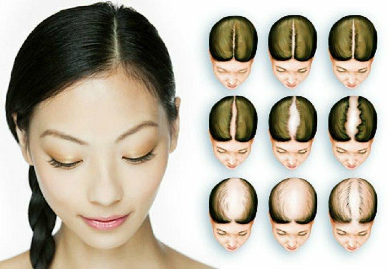 Cebolla para detener la caida del cabello