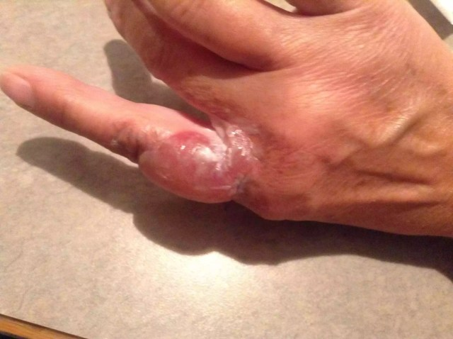 Steam and hot water from an iron caused this large blister