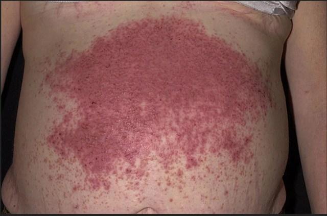 Rash on the abdomen