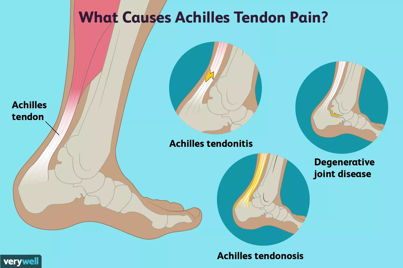 achilles tendon pain causes