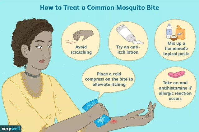 how to treat a mosquito bite