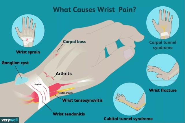 causes of wrist pain