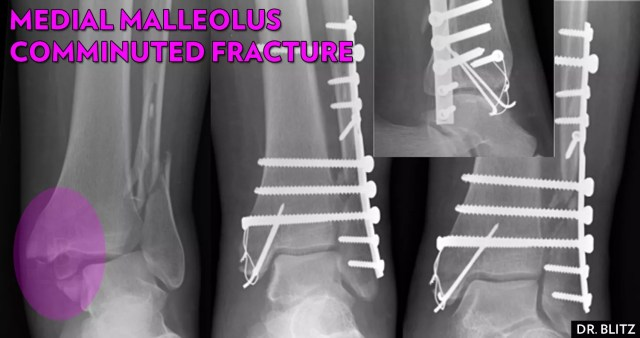 Ankle-Fracture-NYC-Medial-Malleolus-Comminuted.jpg