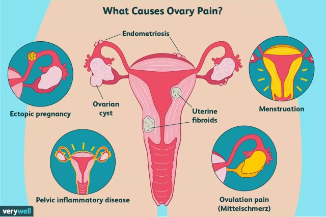 causes of ovary pain