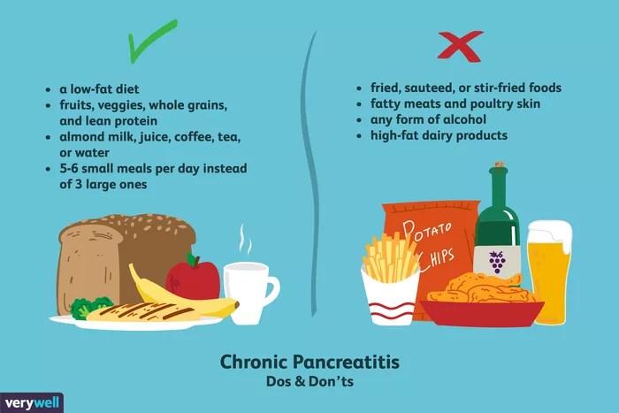 Pancreatic Stones Diet: Eating in a Pancreas-friendly way