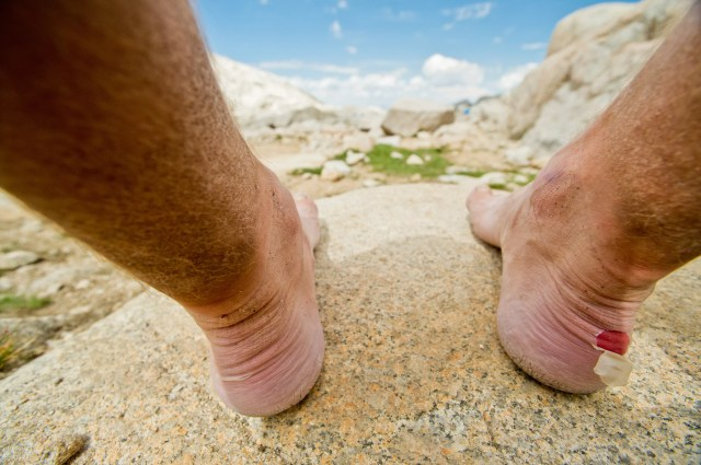 A close up shot of a hikers blistered heel.