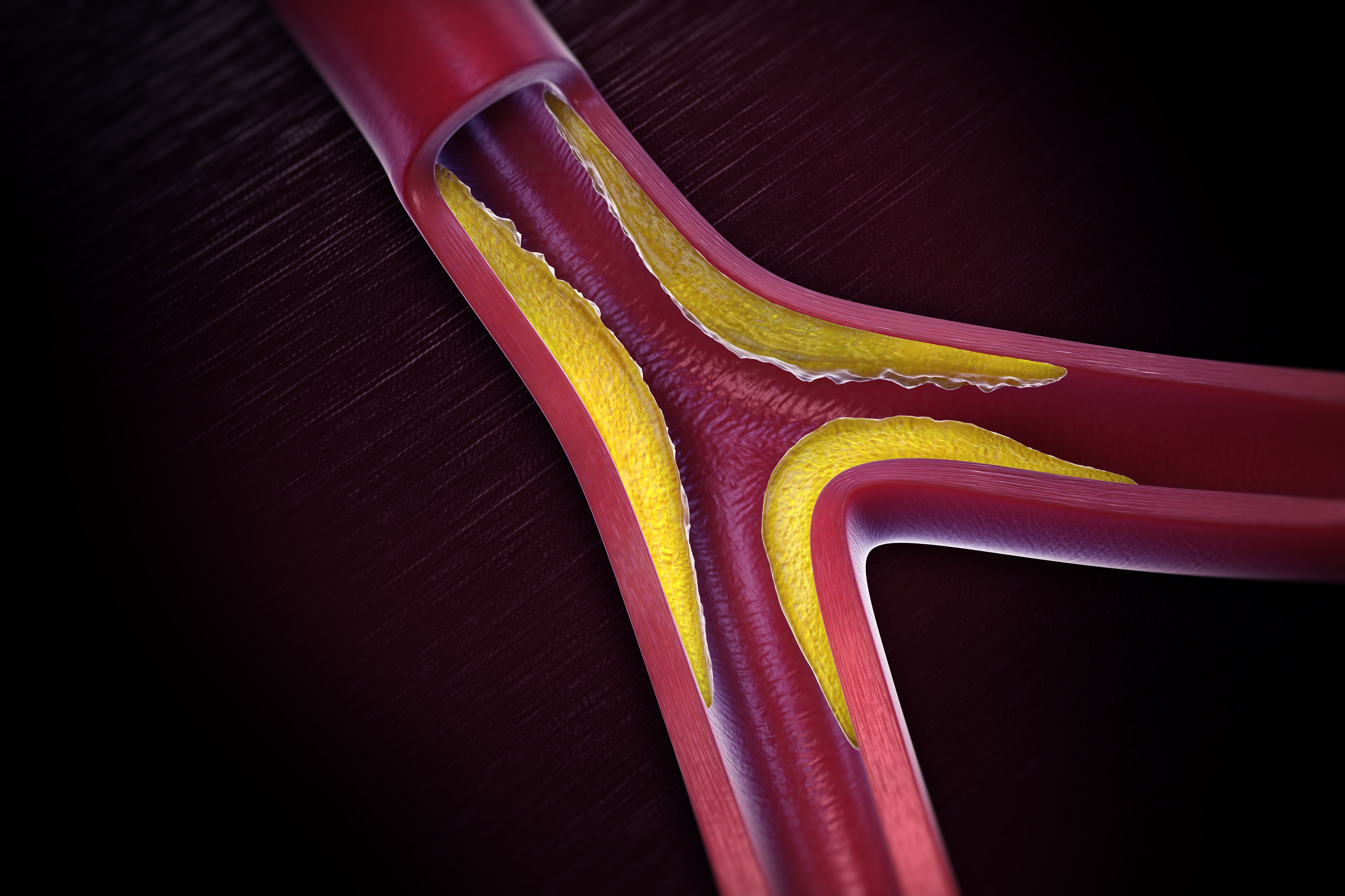 Overview Of Peripheral Artery Disease