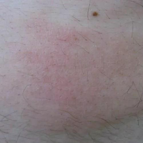 Hives on Abdomen