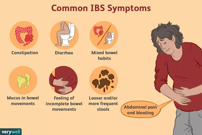 common IBS symptoms