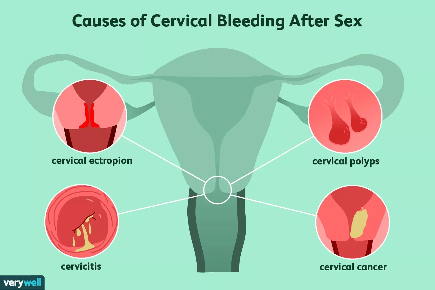 Causes of cervical bleeding after sex