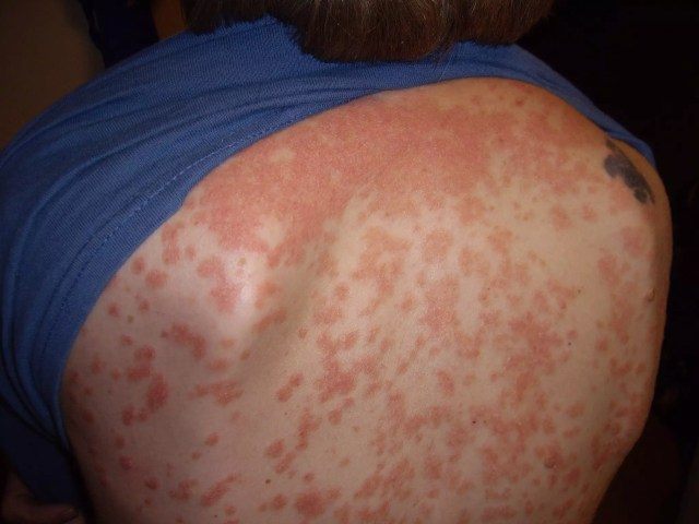 guttate psoriasis of the trunk