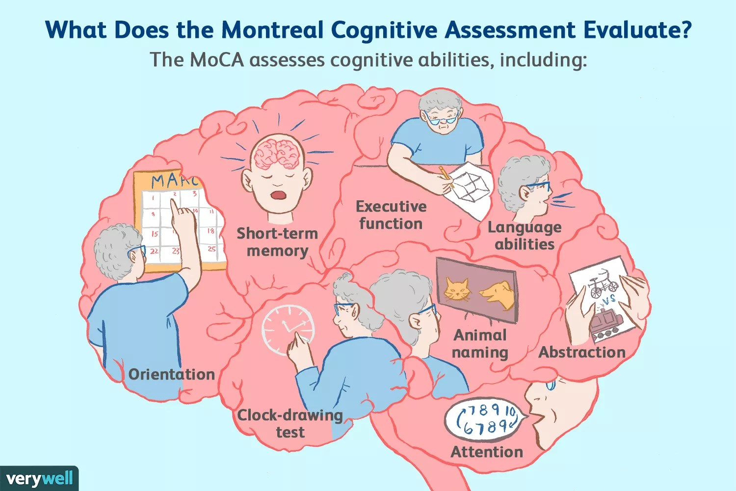 montreal cognitive assessment (MoCA) evaluation