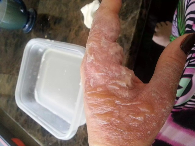 Hot wax under a faucet exploded, causing these burns