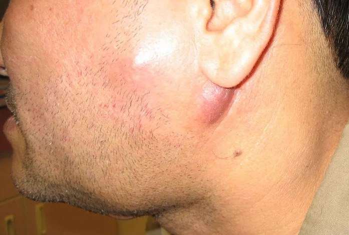 swollen cervical lymph node (lymphadenopathy)