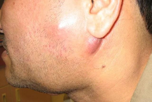 swollen cervical lymph node (lymphadenopathy)