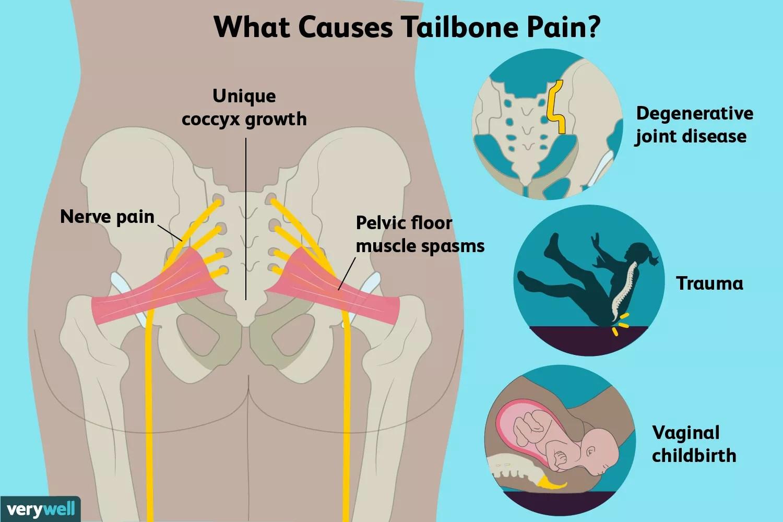 tailbone pain causes