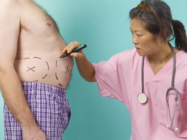 Liposuction preparation
