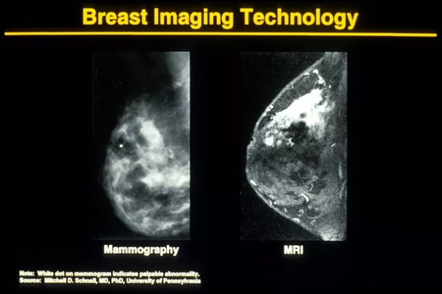 Mammogram and MRI Breast Images Comparison