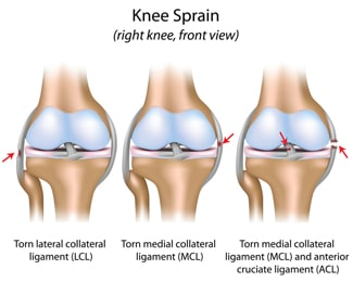 anatomy of a knee injury