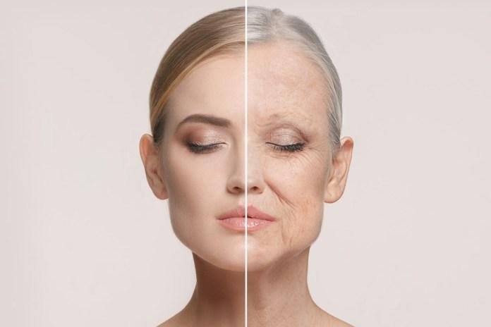 ácido retinoico para las arrugas
