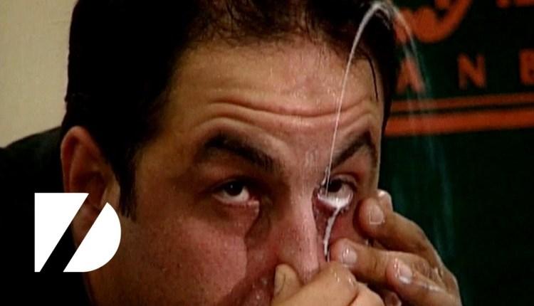Turkish Man Squirts Milk From Eye