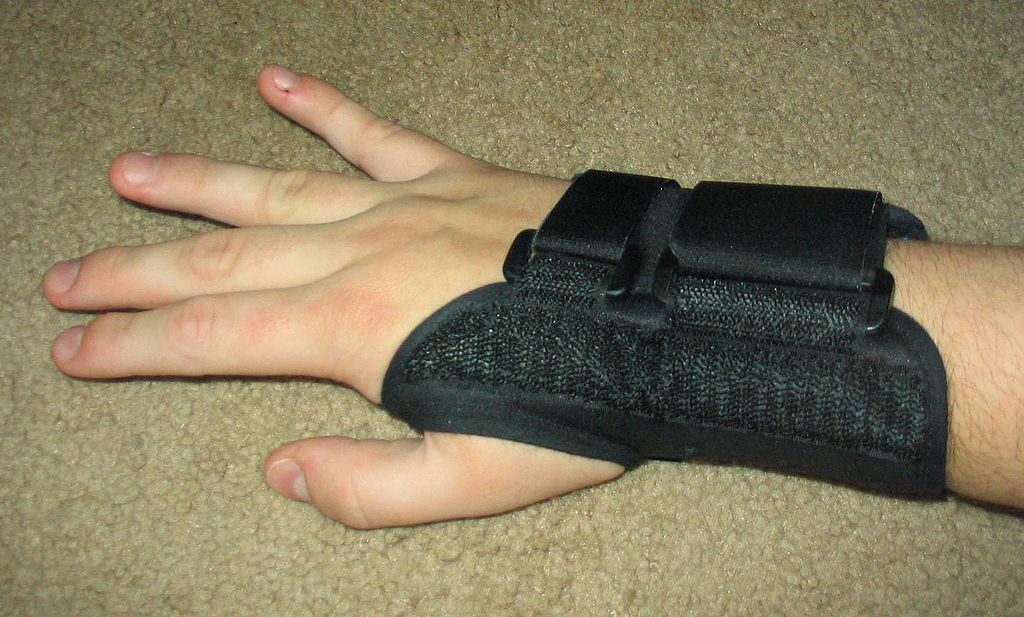 carpal tunnel syndrome natural remedies