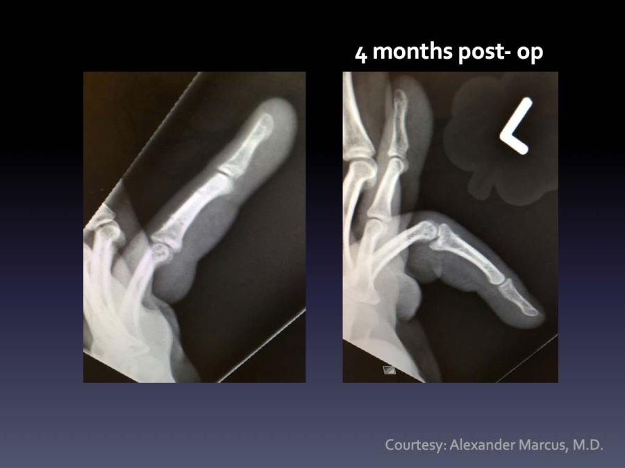 CASE 1: PIP Fx-Dislocation