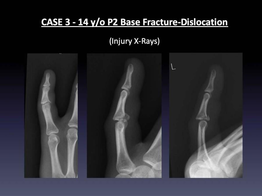 CASE 3: 14 y/o P2 Base Fracture-Dislocation